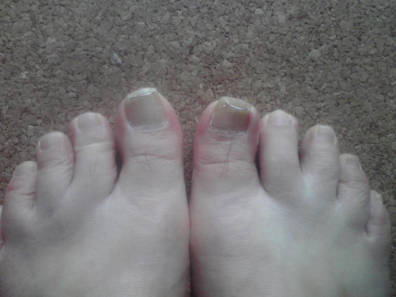 巻き爪治療2